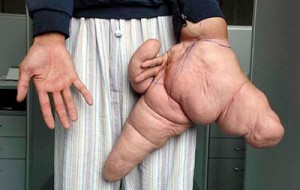 WEIRD2-gigantism-hands-300x190