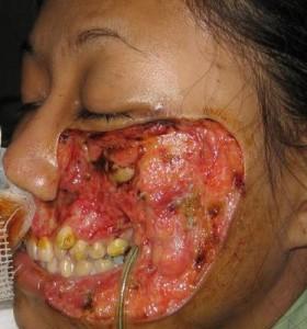 weird9-est-diseases14