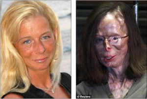 Acid attack victim Patricia Lefranc speaks first time since spurned lover found guilty attempted murder 4