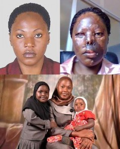 acid-attack-disabled-single-mother-seeks-facial-reconstruction-assistance-21670239