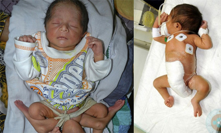 Doctors remove four extra limbs from one-in-a-million baby who was born with SIX legs