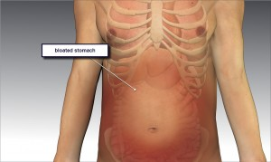 Bloated_stomach