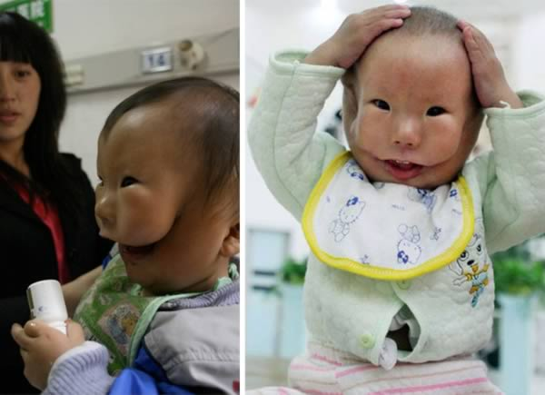 Baby in China Born with Second Face