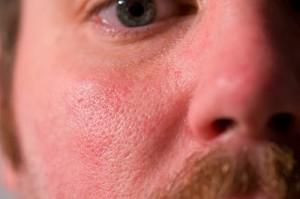 xpores on skin