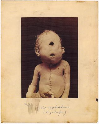 10 Disturbing Creepy Medical Images from History