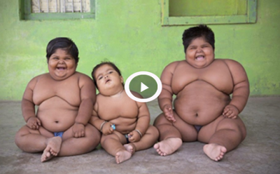 Father To Sell Kidney Just To Save The Lives Of His Obese Children