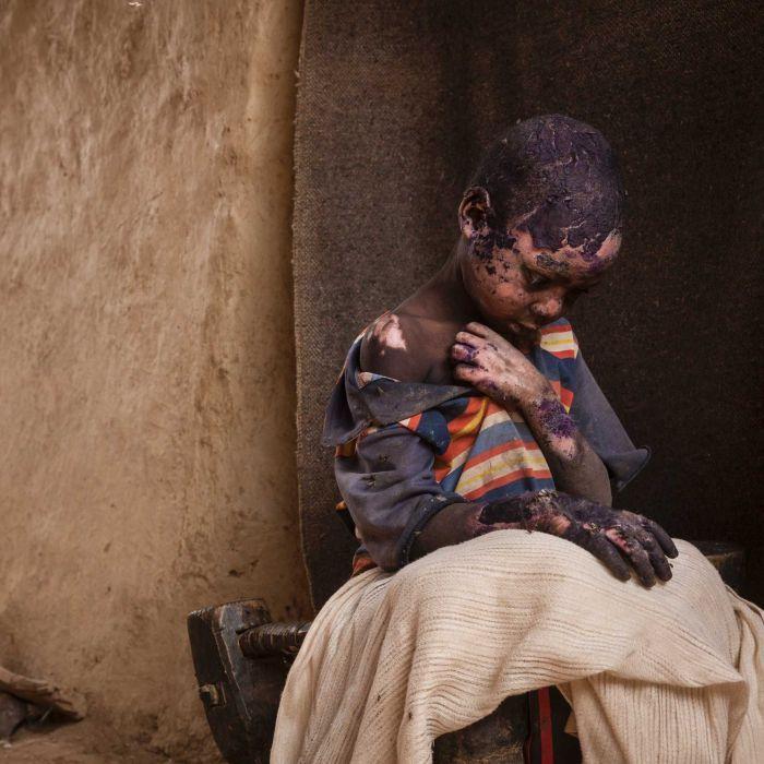 DARFUR, SUDAN: THE FORGOTTEN MOUNTAINS