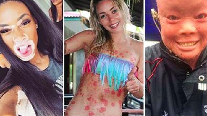 Inspiring Personalities 1: 10 PersonalitiesTo Redefine Beauty Standards With Their Skin