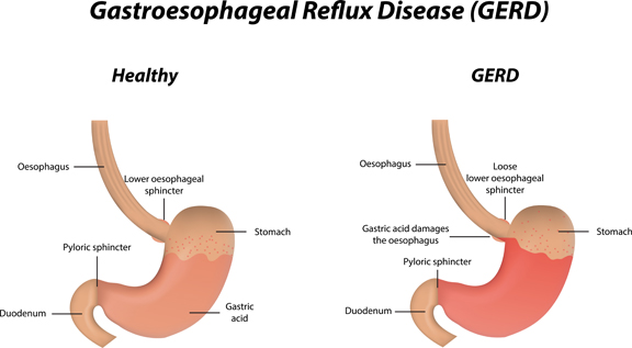 HEALTH: Silent Signs of Acid Reflux, List of Low Acid Foods to Reduce Stomach Acid Reflux (GERD), Foods That Triggers Heartburn  And Getting Fit with GERD
