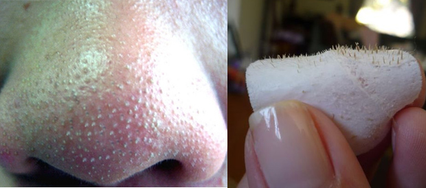 BEAUTY: How To Remove Blackheads And Keep Them Gone