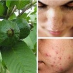 Guava Leaves to Beat Wrinkles, Acne, Dark Spots and Skin Allergies