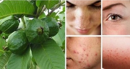 HEALTH: Beat Wrinkles, Acne, Dark Spots, Skin Allergies and Hair Loss by Using Guava Leaves