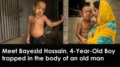 HEALTH: Bayezid Hossain, A 4 Year Old Boy From Bangladesh With Premature Ageing Condition Progeria