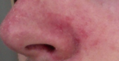 HEALTH EDUCATION: Red,Dry Skin on Nose And Seborrheic Dermatitis