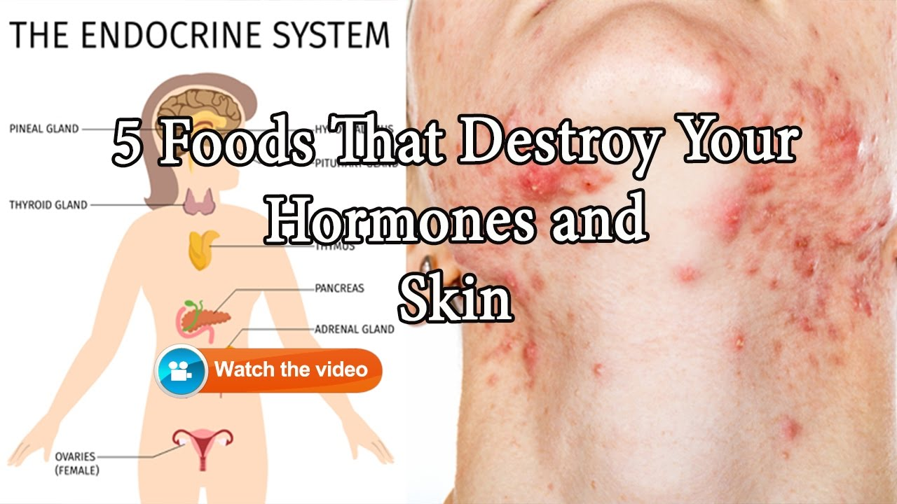 HEALTH EDUCATION: 5 FOODS THAT DESTROY YOUR HORMONES & SKIN, THE 5 ESSENTIAL OILS THAT CAN HELP RESET YOUR HORMONES