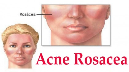 HEALTH EDUCATION: Rosacea Other Known As Adult Acne