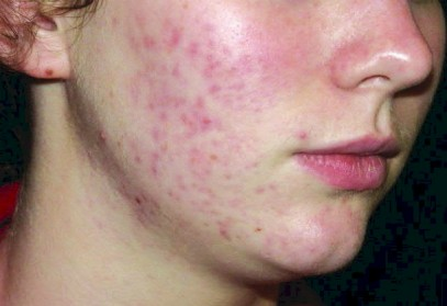 HEALTH EDUCATION: Natural Remedies To Get Rid Of Facial Redness And The Anti-Acne Diet