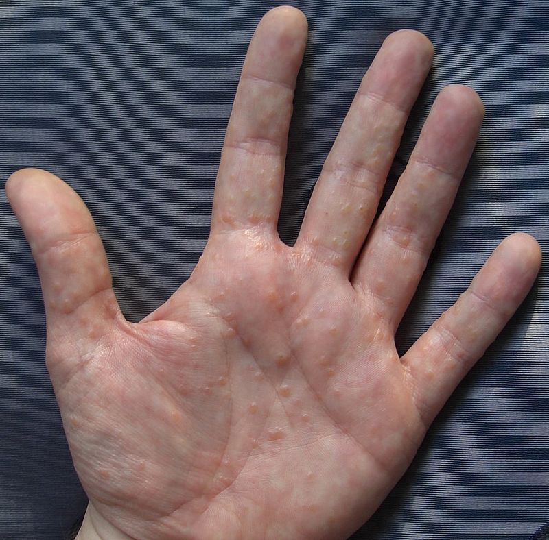 HEALTH PROBLEM: Dyshidrotic Eczema is a Small, Intensely Itchy Blisters on the Edges of the Fingers, Toes, Palms, and Soles of the Feet