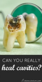HEALTH: Can You Really Heal Cavities?