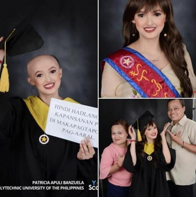 PEOPLE: Patricia Apuli Banzuela, A Graduating Student With Alopecia Of PUP Inspires Netizens